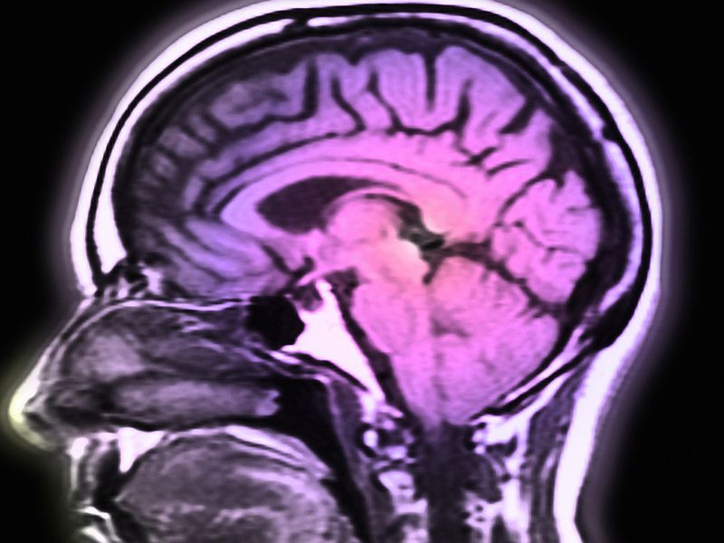 News Picture: Brain's Iron Stores May Be Key to Alzheimer's