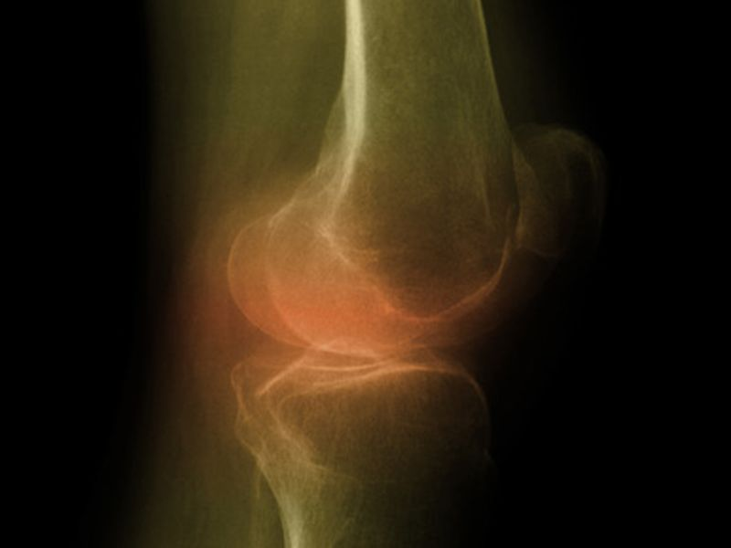 News Picture: Are Steroids Really the Answer for Arthritic Knees?