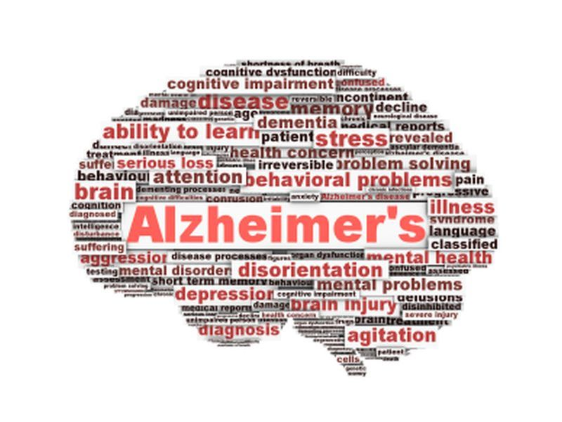 News Picture: Brain Plaques Signal Alzheimer's Even Before Other Symptoms Emerge: Study