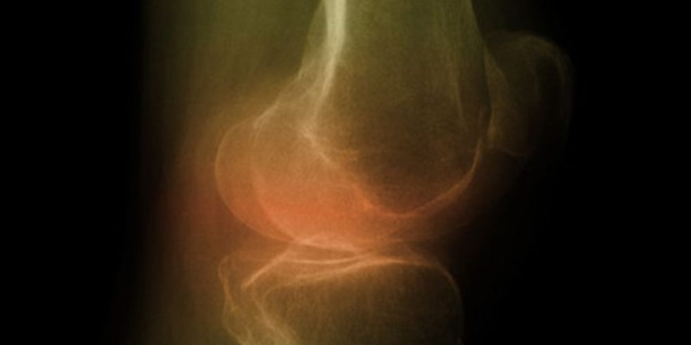 Are Steroids Really the Answer for Arthritic Knees?