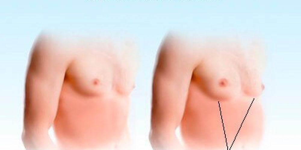 Gynecomastia (Enlarged Male Breasts)