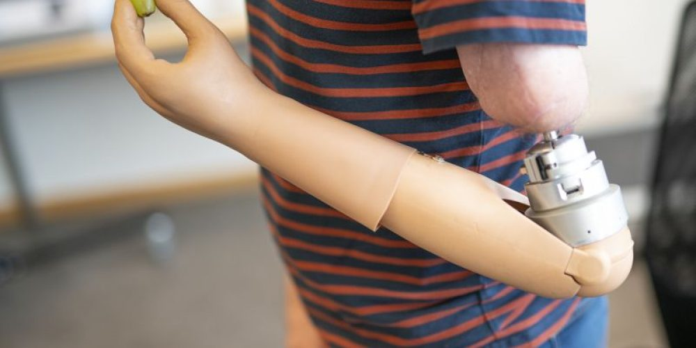 High-Tech Prosthetic Arm Melds With Patient's Anatomy