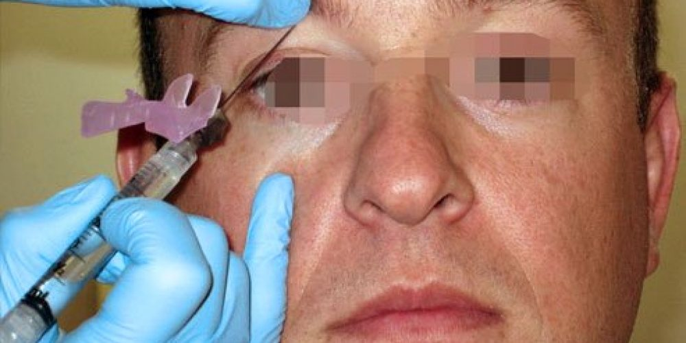How Long Does a Supraorbital Nerve Block Last?