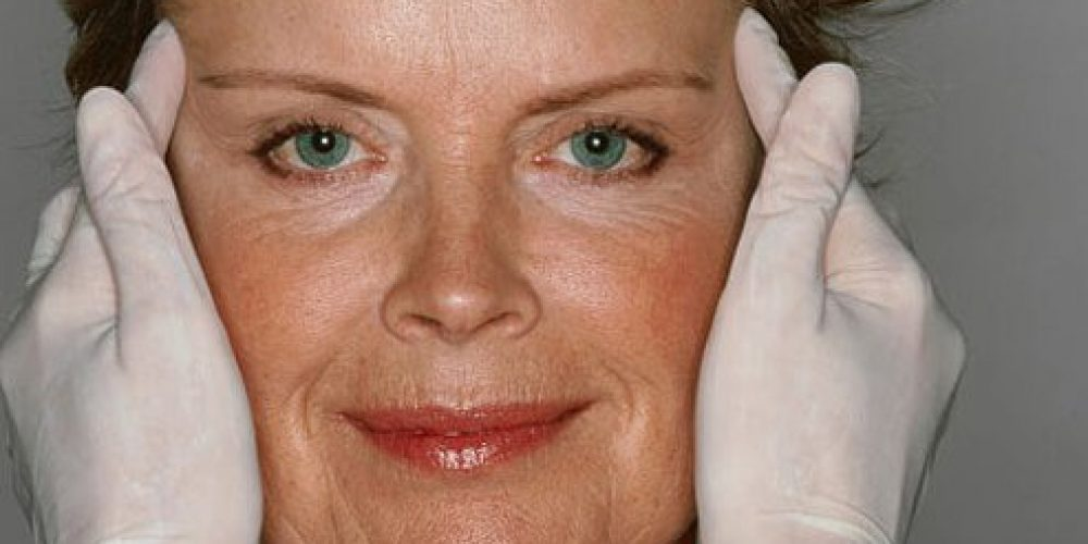 How Much Does a Brow Lift Cost?