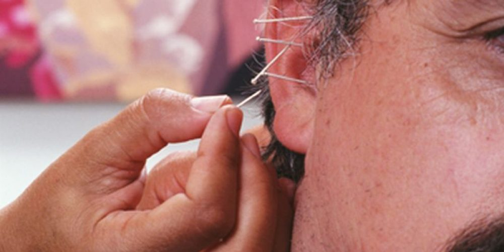 Trial Finds Acupuncture May Help Prevent Migraines