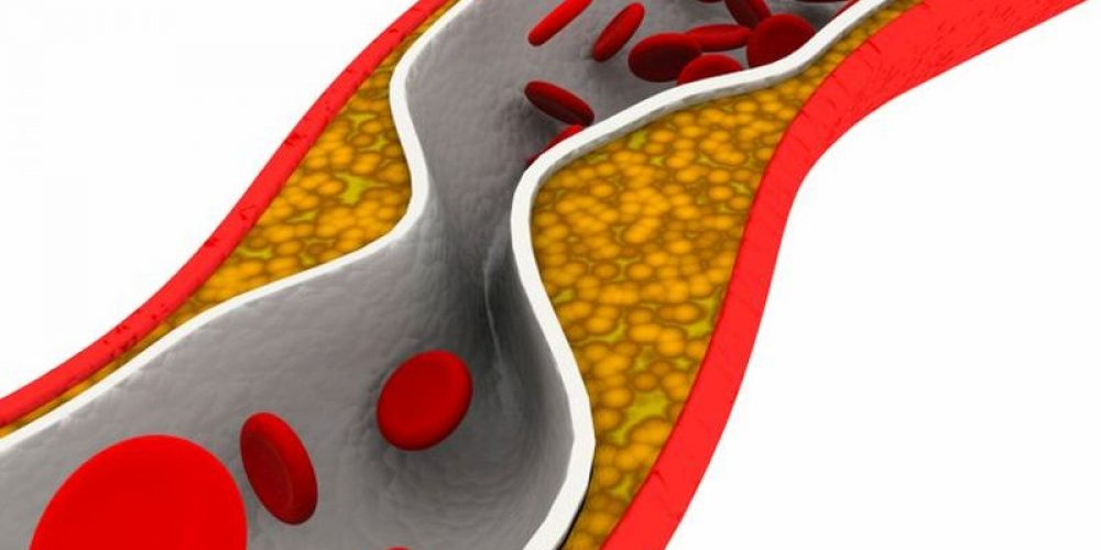 Type 2 Diabetes Linked to Worse Mental Outcomes After Stroke
