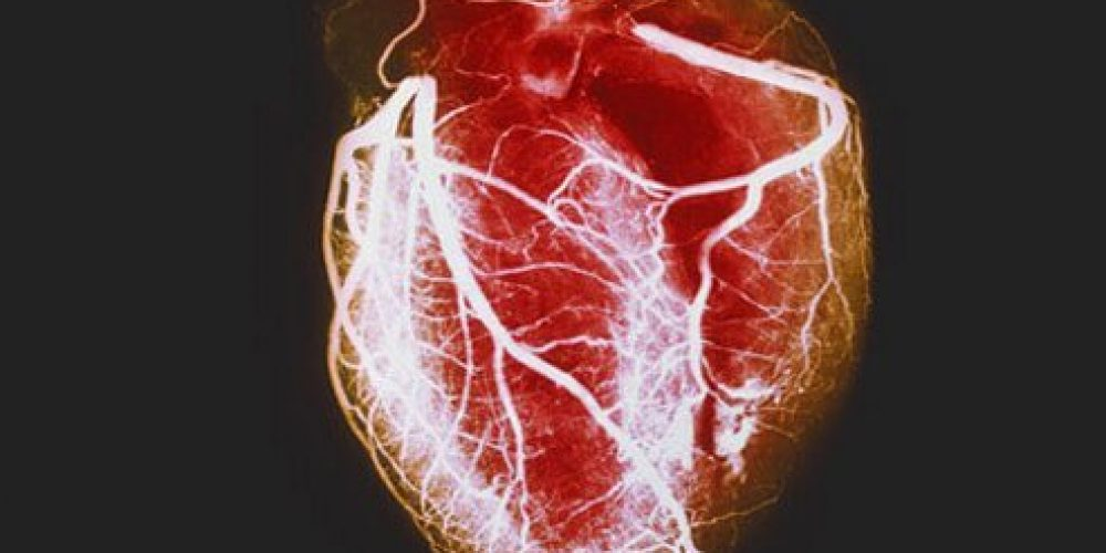 What Are the Four Signs of an Impending Heart Attack?