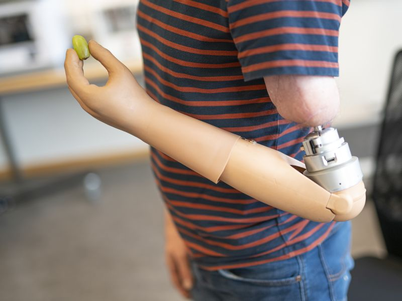 News Picture: High-Tech Prosthetic Arm Melds With Patient's Anatomy