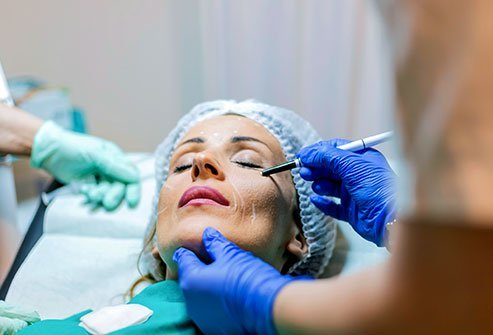 A cosmetic surgeon marks his planned cuts with ink on a woman's face in preparation for an SMAS facelift surgery