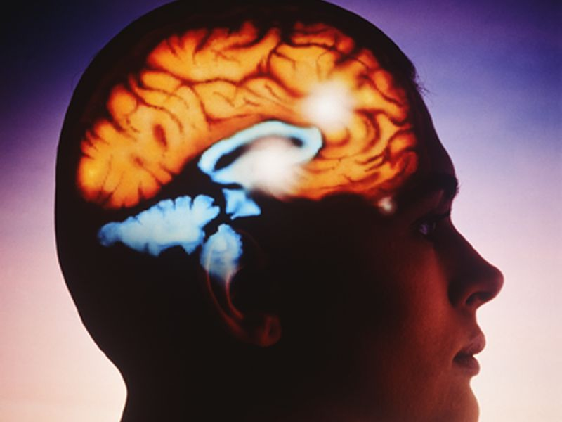 News Picture: Magnetic Brain 'Zap' Shows Promise Against Severe Depression