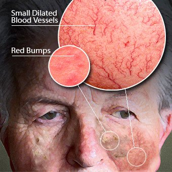 An infographic displays the signs and symptoms of rosacea.