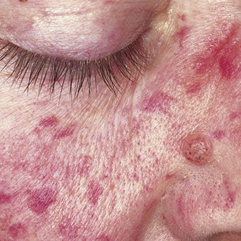 A close-up of rosacea around the nose and eyes.