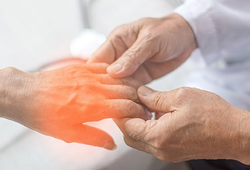 Picture of neuropathy pain in the fingers.
