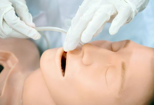 Nasogastric intubation, or inserting a tube through the nose and into the stomach, may be done to place a feeding tube or for diagnostic purposes (esophagoscopy or upper endoscopy).